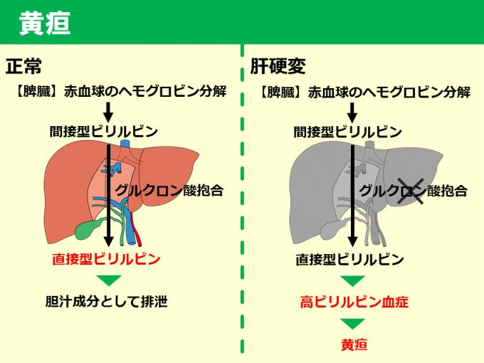 肝硬変_黄疸_170523